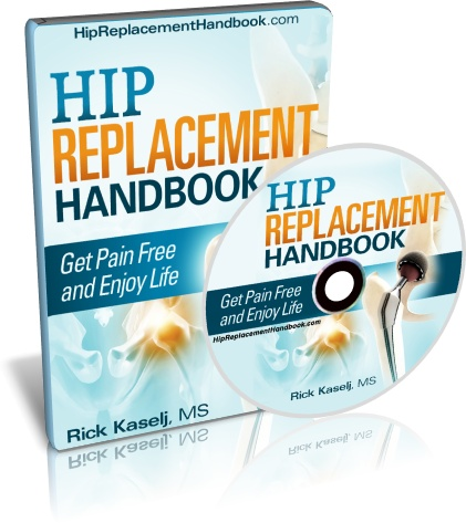 Hip Replacement Handbook